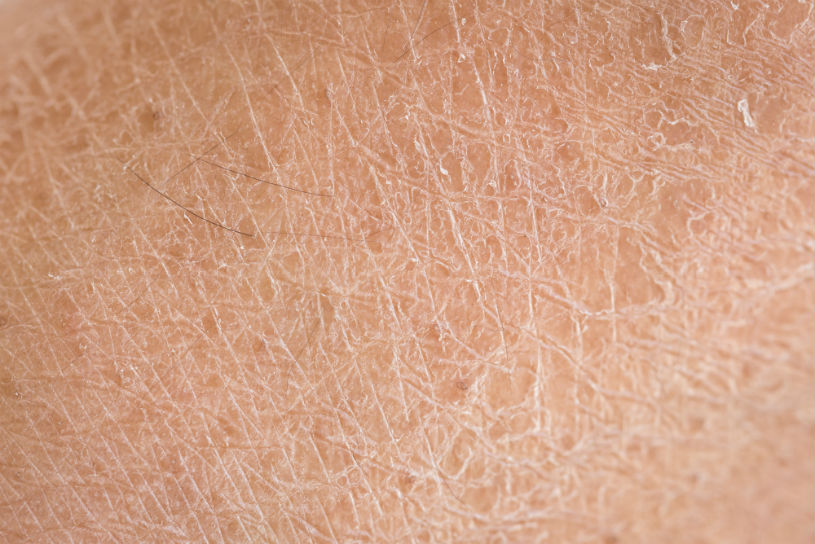 caratteristiche pelle secca-1