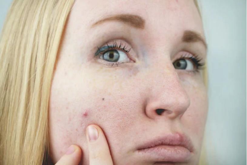 riconoscere la pelle grassa